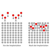hochenergieionenimplantation